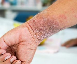 Allergic Eczema: Causes, Symptoms, and Diagnosis