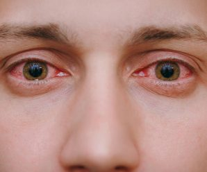 Allergic Conjunctivitis: Types, Causes, and Symptoms