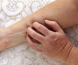 Shingles Without a Rash: What You Should Know