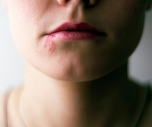 Shingles on the Face: Symptoms, Treatments, and More